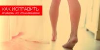 Как исправить кривизну ног упражнениями