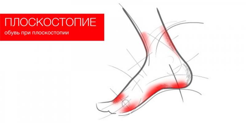 Обувь при плоскостопии
